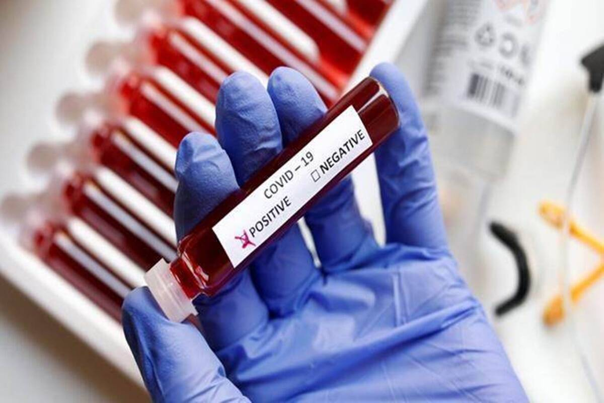 New testing method can diagnose COVID-19 in just 30 minutes, study finds
